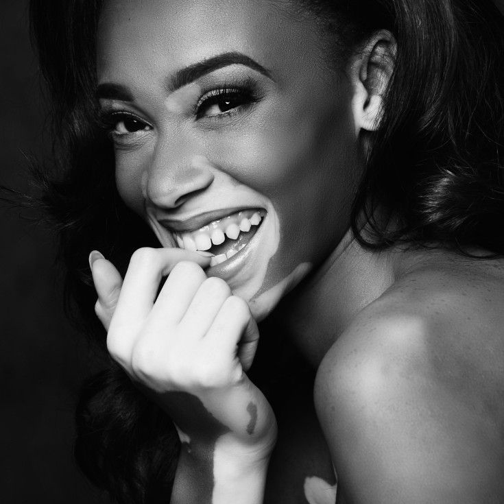 Winnie Harlow News -Creative Models -Agenzia di Modelle Brescia